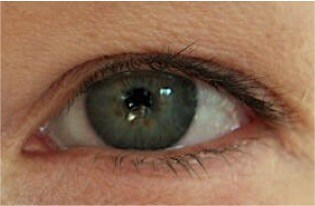 Wimpernwachstum durch Wimpernserum Vorher