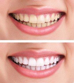 Zähne aufhellen vorher nachher Effekt