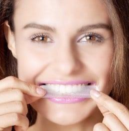 Zähne aufhellen mit Whitening Stripes