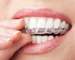 Zähne aufhellen mit Bleichmitteln für zuhause