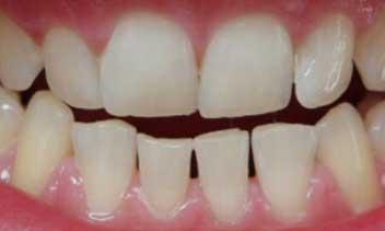 Weisse Zähne mit Pearlsmile