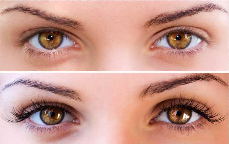 Wimpernserum vorher-nachher Wimpernwachstum durch Wimpernserum - Youneeq
