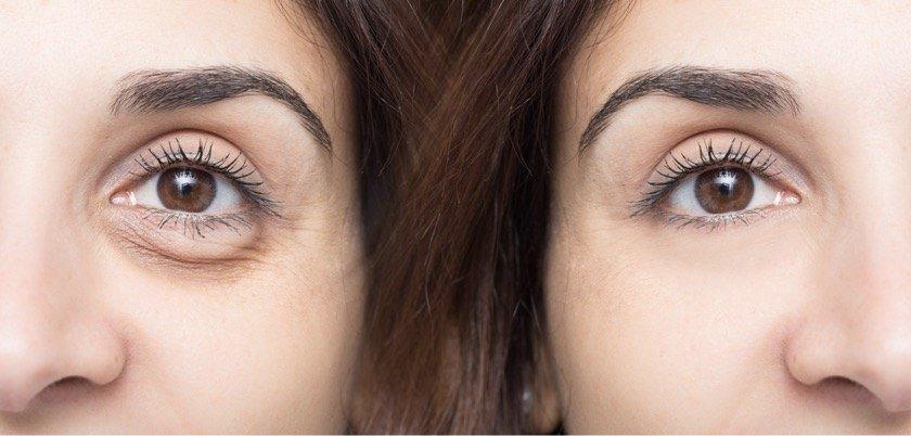 Augenringe entfernen vorher-nachher