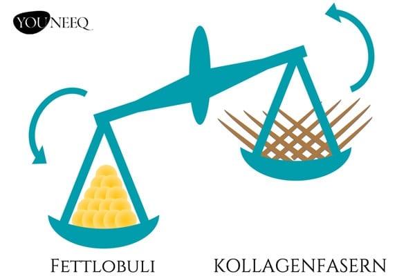 Bei Cellulite befindet sich die Haut im Ungleichgewicht: Mehr Fettlobuli stehen weniger Kollagenfasern gegenüber