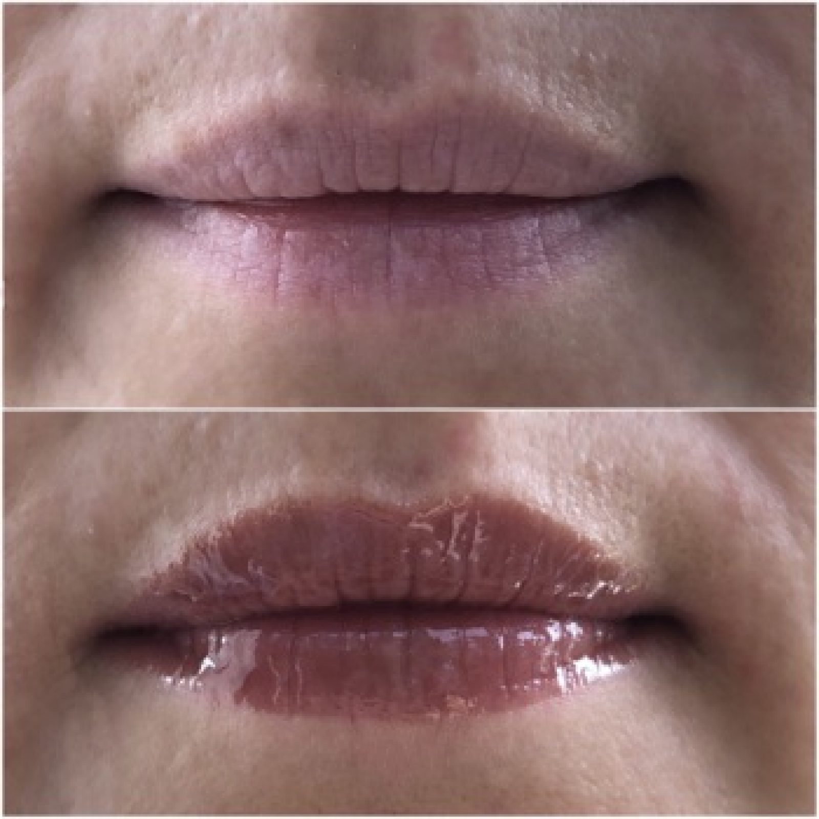Luscious Lips vorher/nachher
