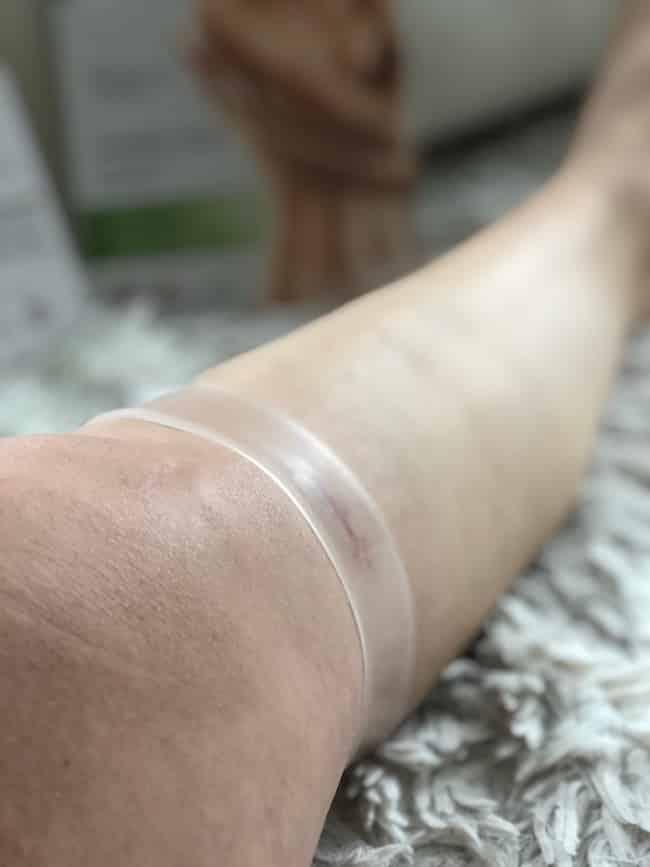 Narbenpflege Anwendung nach Operation
