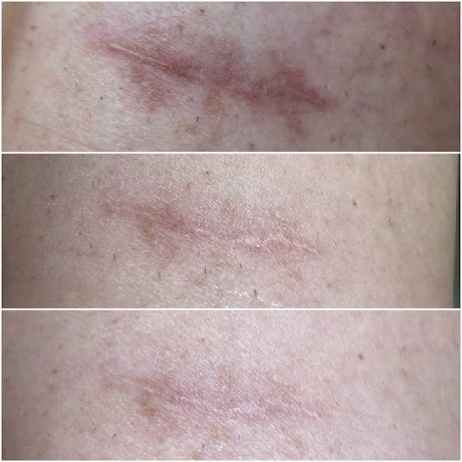 Narbenpflege Narbenpads Test