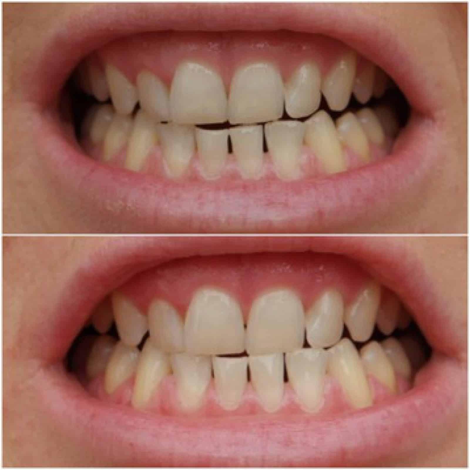 Zähne aufhellen mit Pearlsmilelsmile