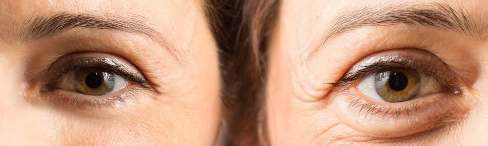Augencreme Test Augenfalten