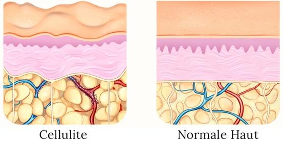 Unterschied zwischen Cellulite und normaler Haut