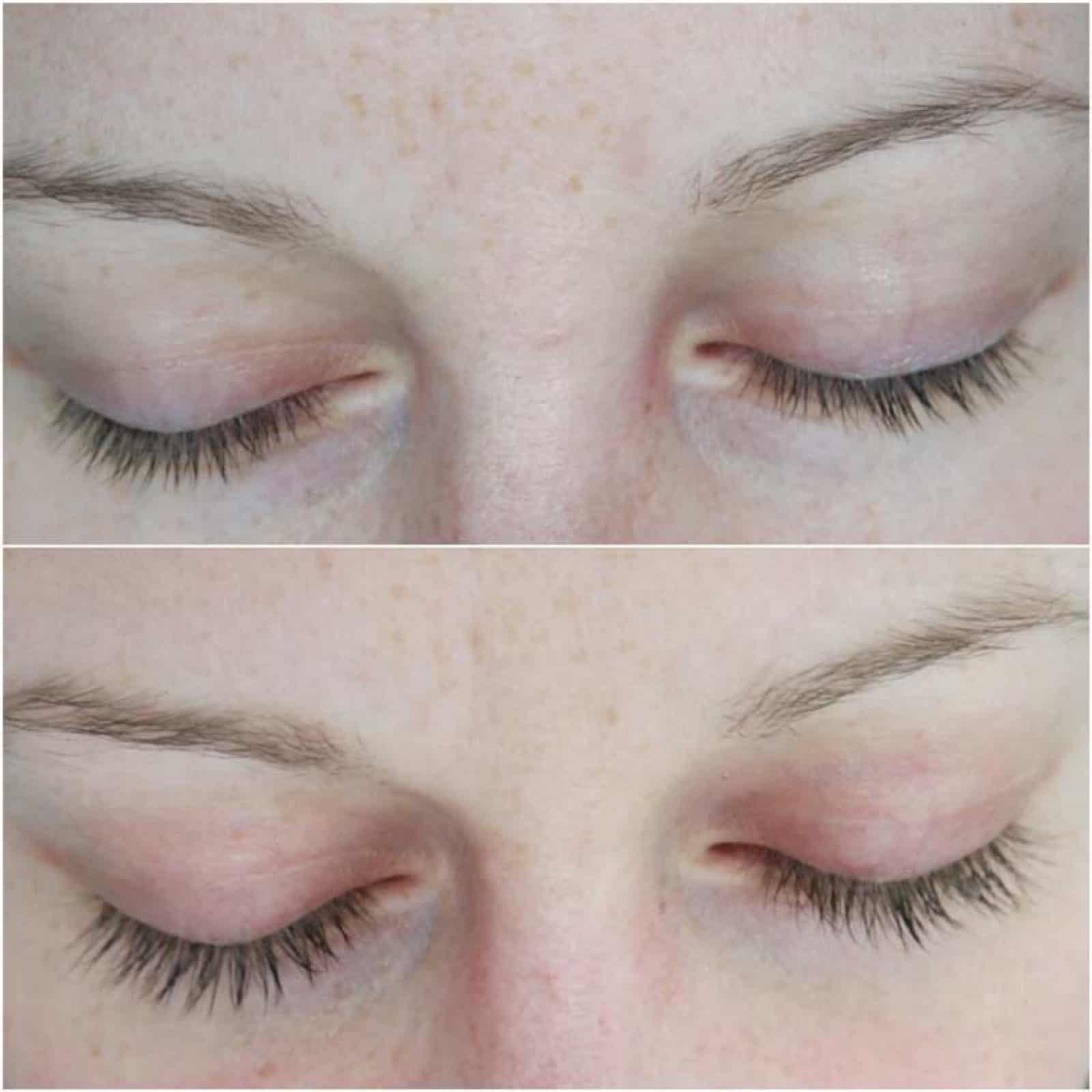 Hairplus vorher nachher Bild 2
