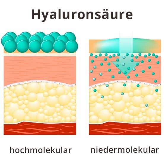 Niedermolekulare Hyaluronsäure