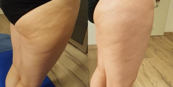 Skin689 vorher nachher Bild Testerin Martina