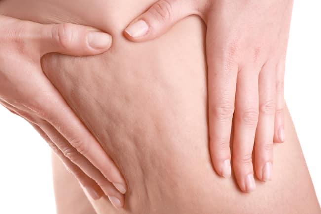 Cellulite – So wirst Du sie wieder los