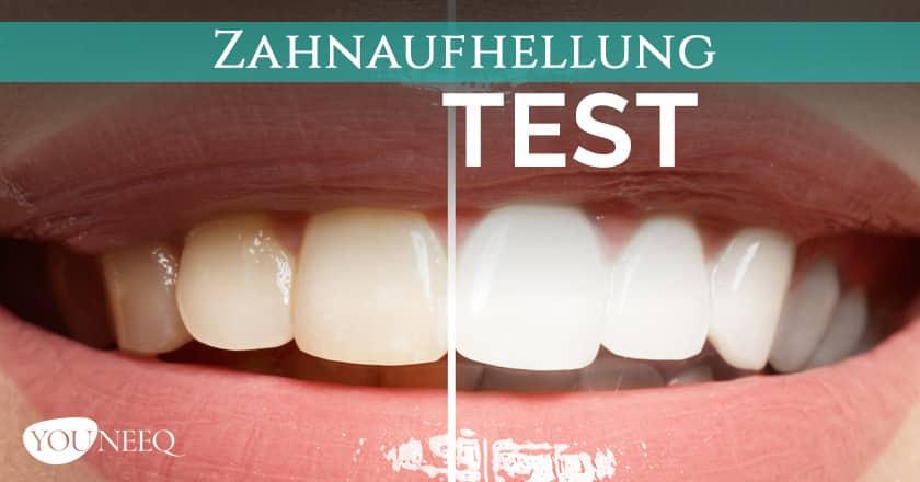 Zähne aufhellen Test