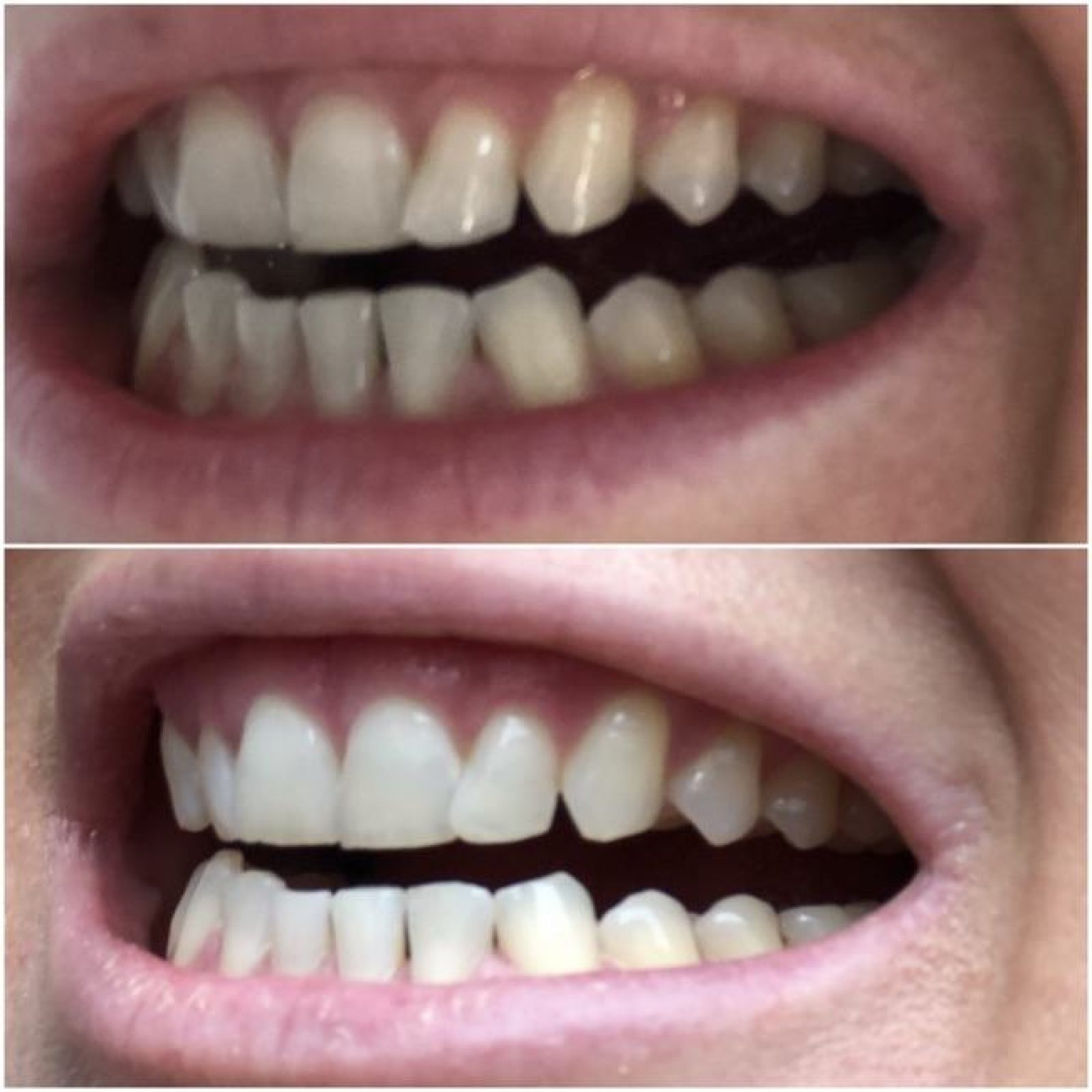 Zahnaufhellungssystem
